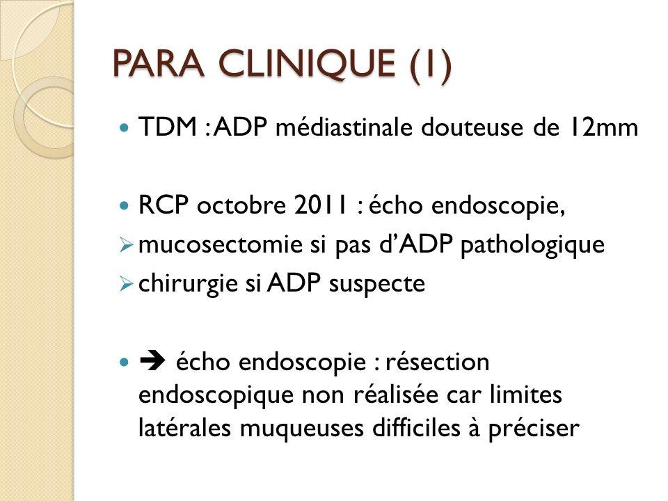 PARA CLINIQUE (1) TDM : ADP médiastinale douteuse de 12mm