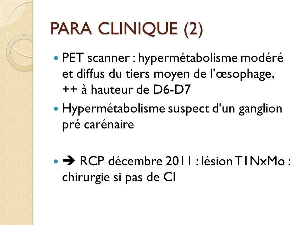 PARA CLINIQUE (2) PET scanner : hypermétabolisme modéré et diffus du tiers moyen de l'œsophage, ++ à hauteur de D6-D7.