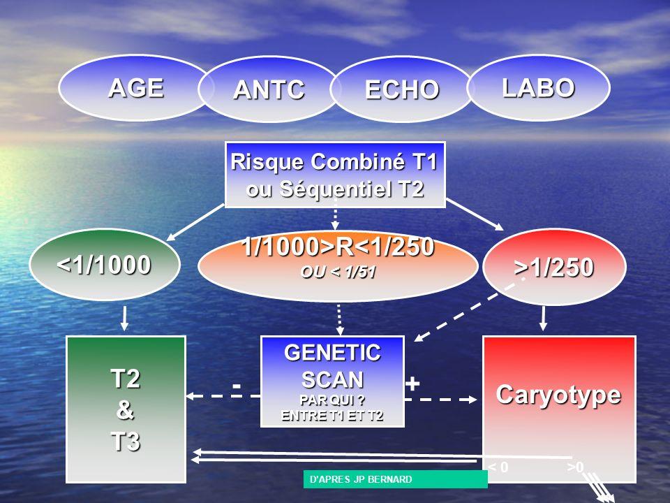 Risque Combiné T1 ou Séquentiel T2