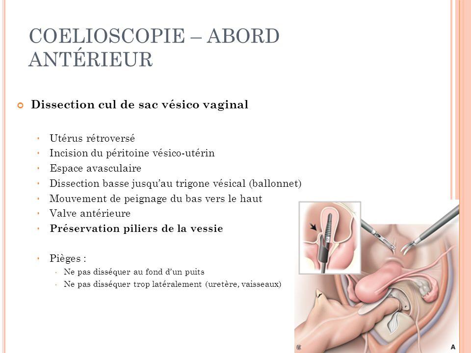 COELIOSCOPIE – ABORD ANTÉRIEUR