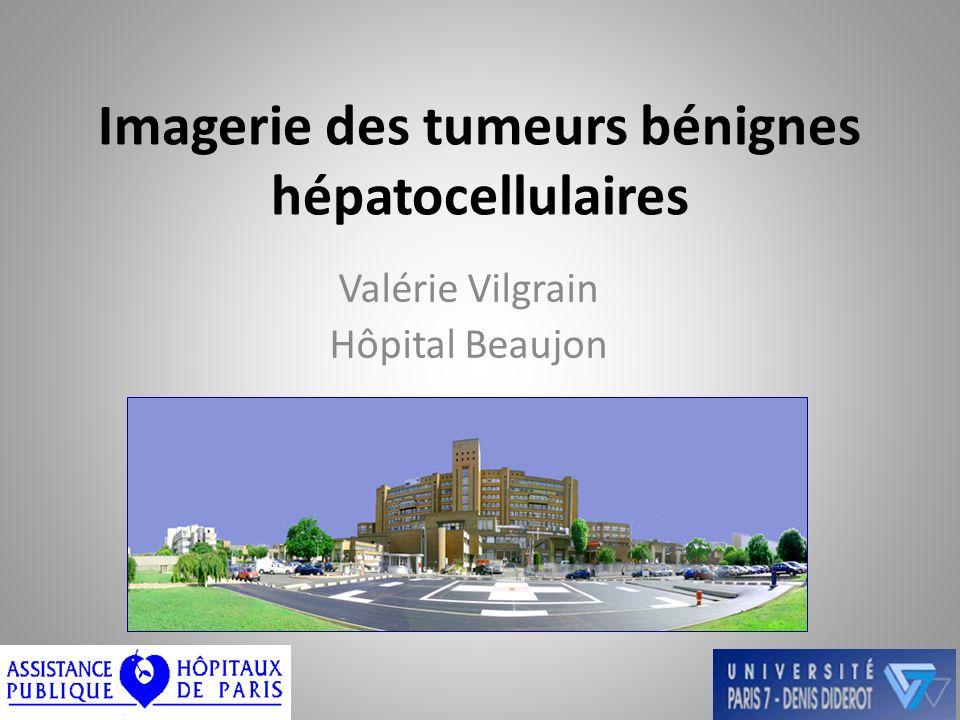 Imagerie des tumeurs bénignes hépatocellulaires