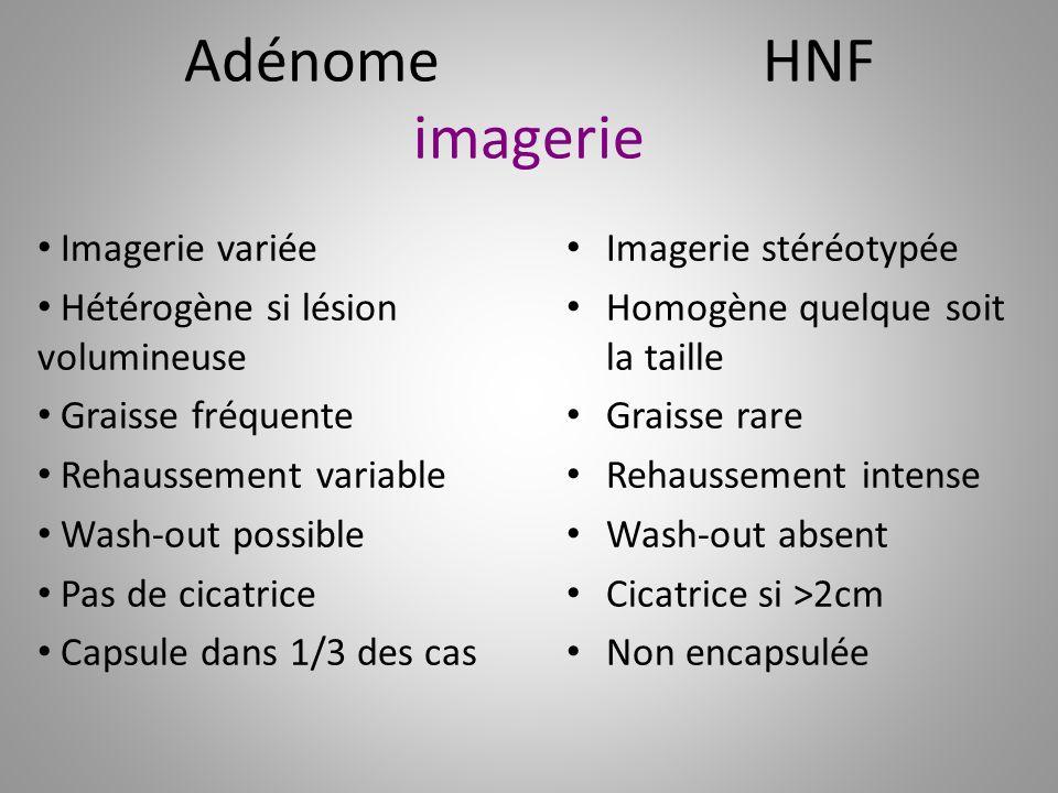 Adénome HNF imagerie Imagerie variée Hétérogène si lésion volumineuse