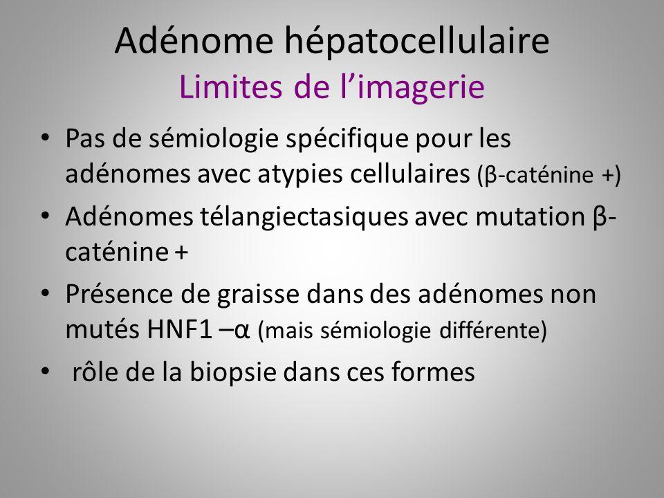 Adénome hépatocellulaire Limites de l'imagerie