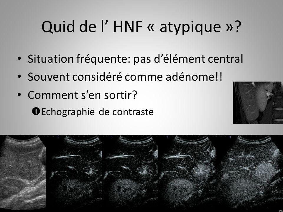 Quid de l' HNF « atypique »