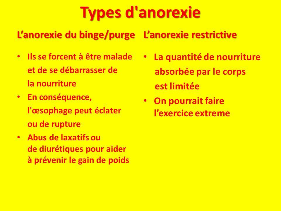 Types d anorexie L'anorexie du binge/purge L'anorexie restrictive