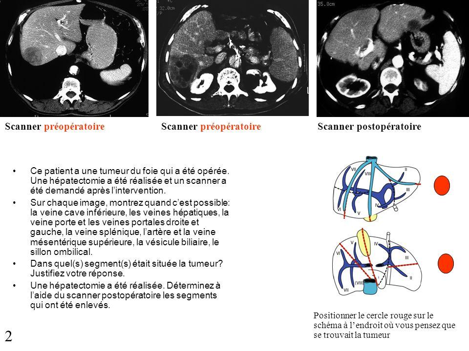 2 Scanner préopératoire Scanner préopératoire Scanner postopératoire