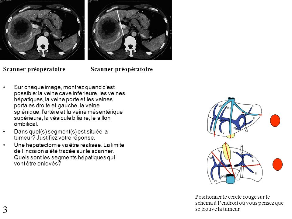 3 Scanner préopératoire Scanner préopératoire