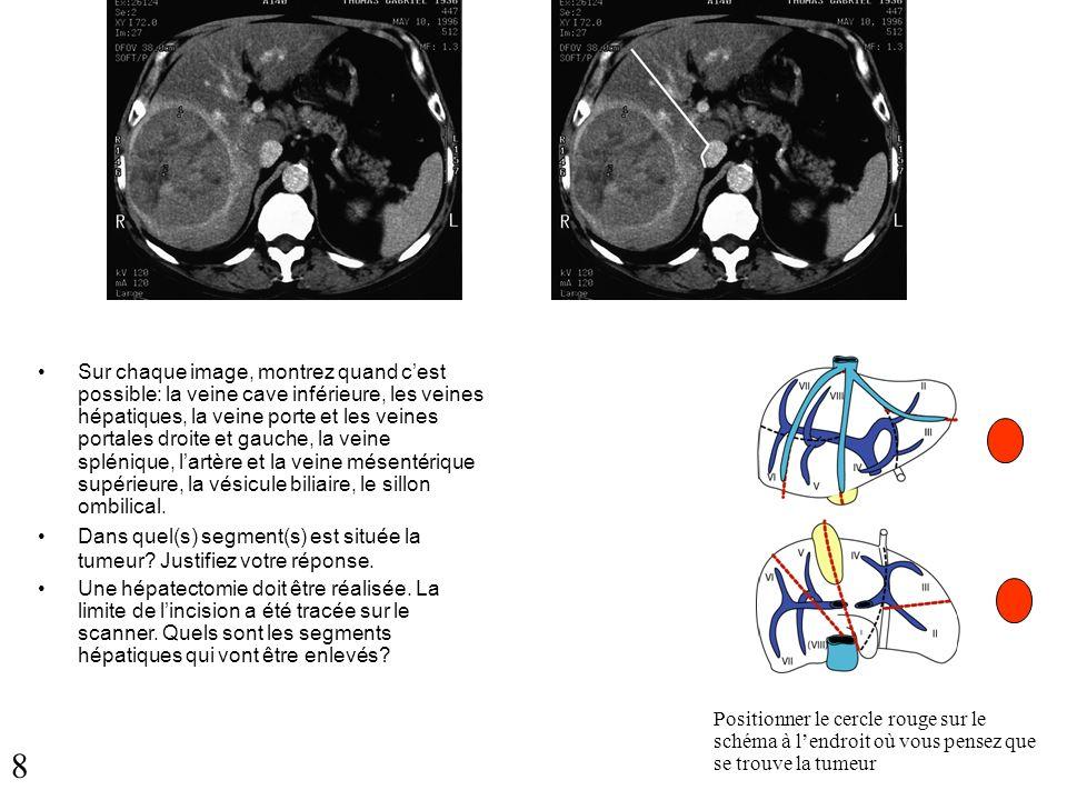 Sur chaque image, montrez quand c'est possible: la veine cave inférieure, les veines hépatiques, la veine porte et les veines portales droite et gauche, la veine splénique, l'artère et la veine mésentérique supérieure, la vésicule biliaire, le sillon ombilical.
