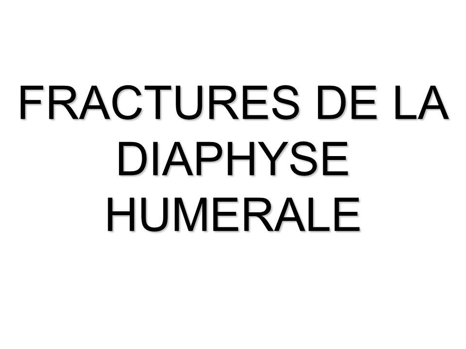 FRACTURES DE LA DIAPHYSE HUMERALE