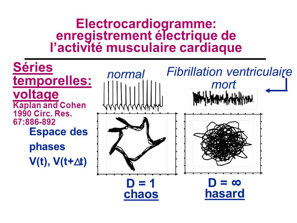 Electrocardiogramme: