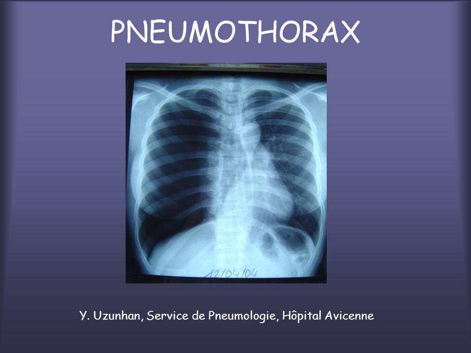 PNEUMOTHORAX Y. Uzunhan, Service de Pneumologie, Hôpital Avicenne