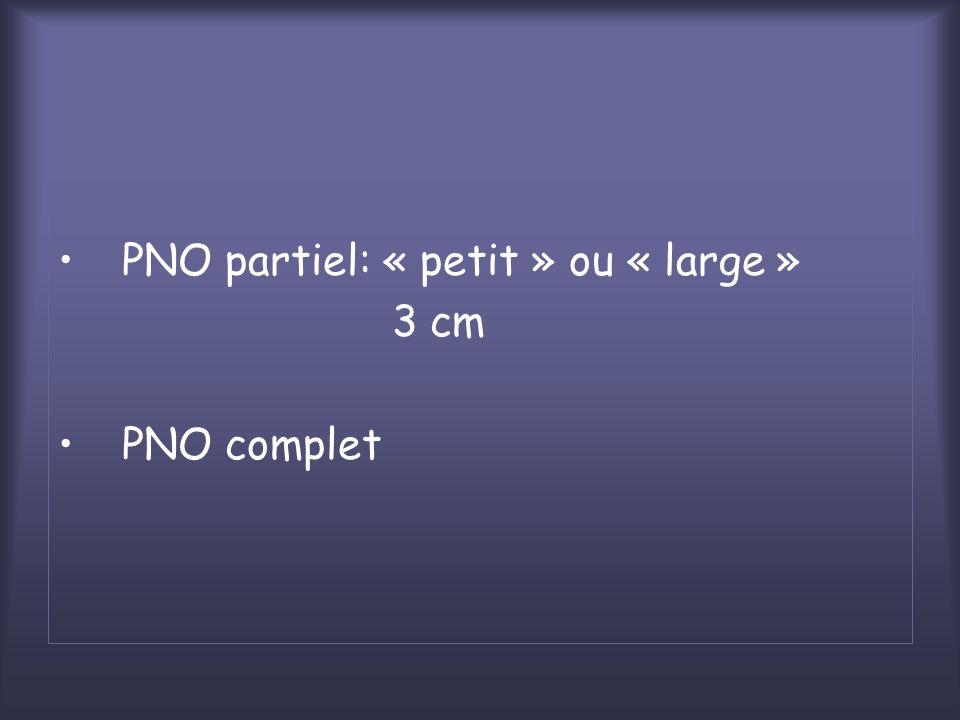 PNO partiel: « petit » ou « large »