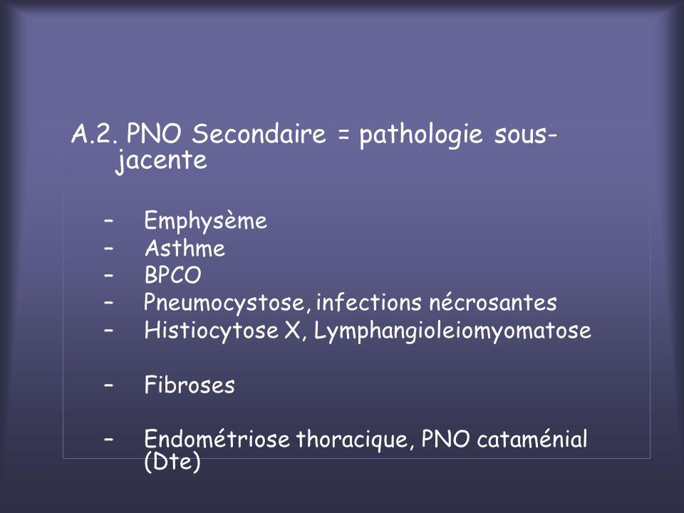 A.2. PNO Secondaire = pathologie sous-jacente