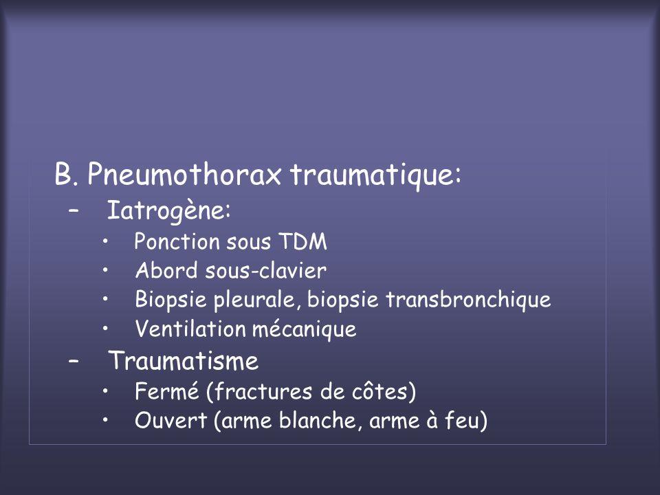 B. Pneumothorax traumatique: