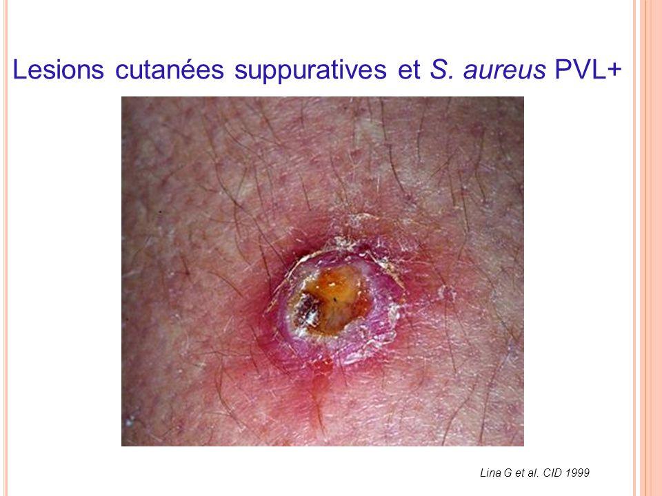 Lesions cutanées suppuratives et S. aureus PVL+