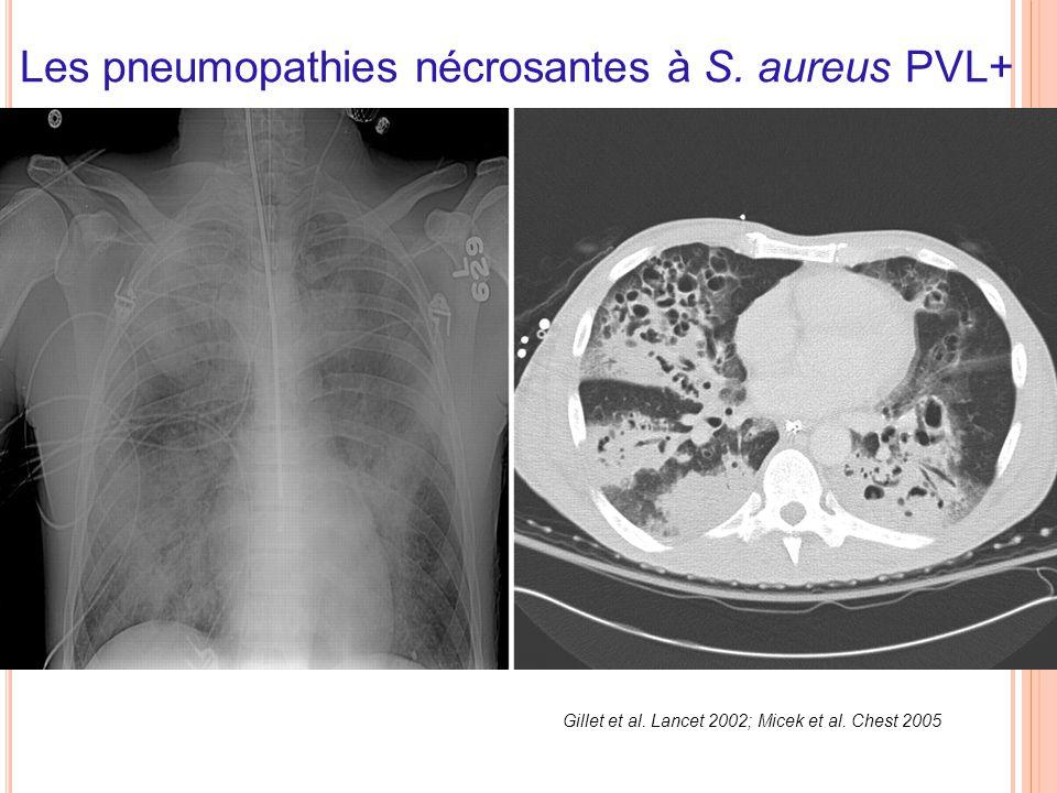 Les pneumopathies nécrosantes à S. aureus PVL+