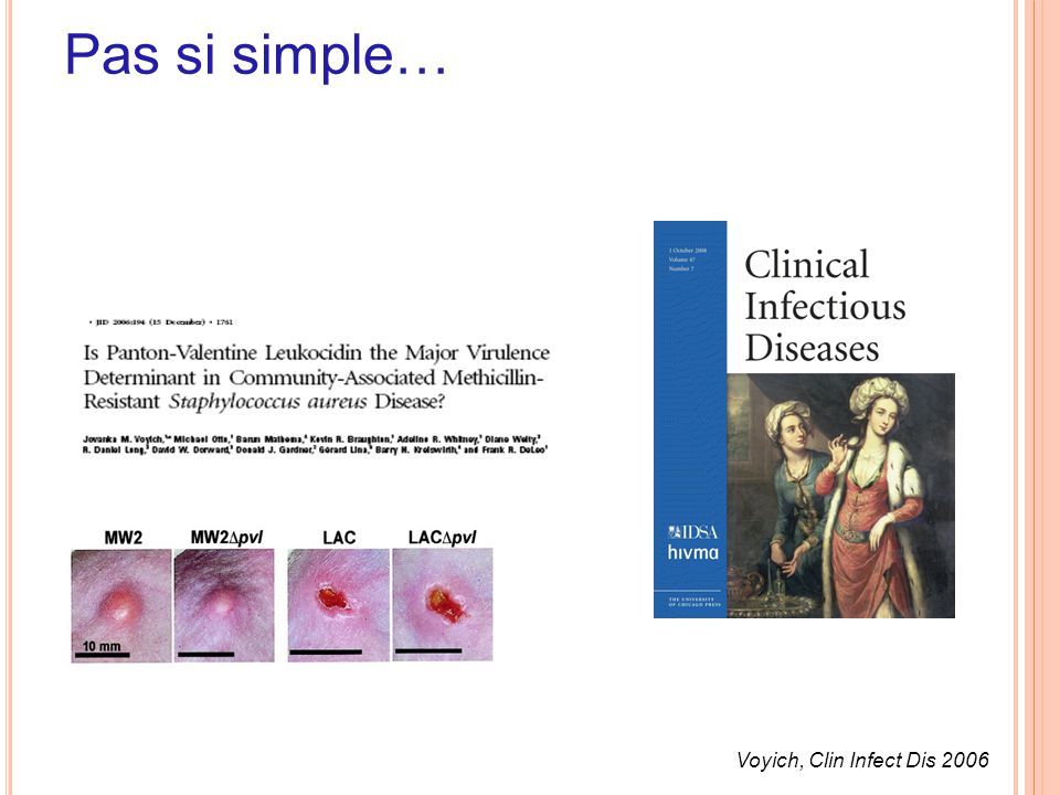 Pas si simple… Voyich, Clin Infect Dis 2006 50