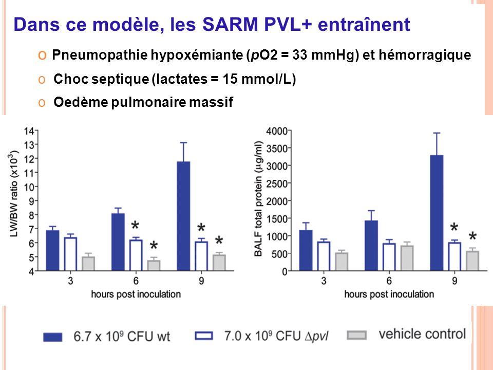 Dans ce modèle, les SARM PVL+ entraînent