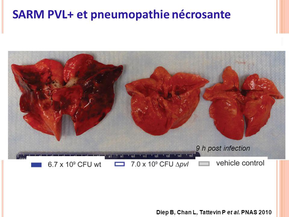 SARM PVL+ et pneumopathie nécrosante