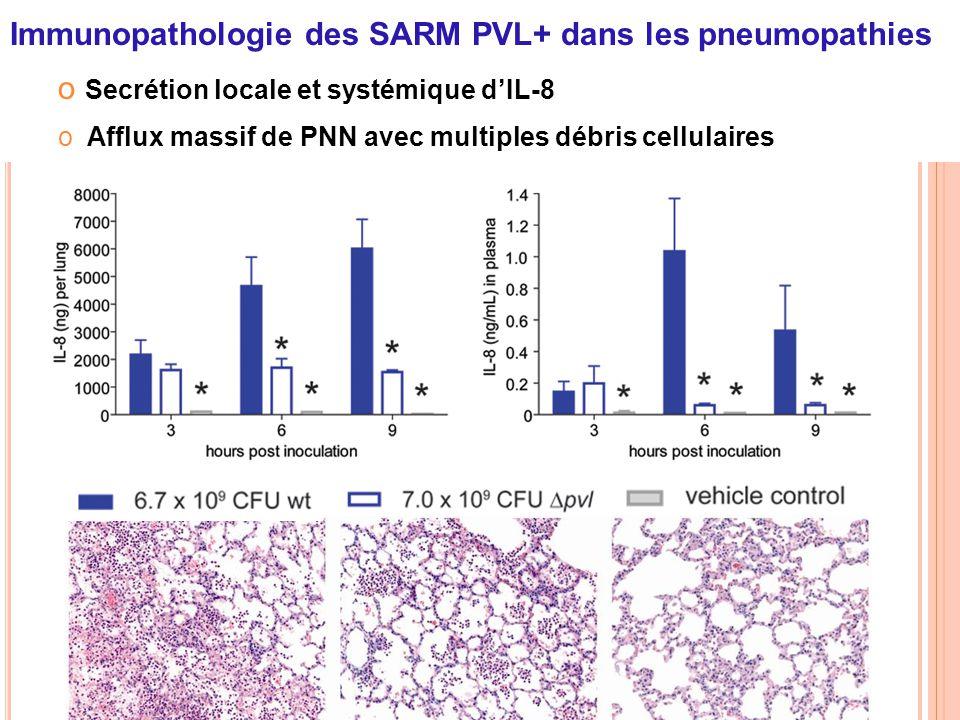 Immunopathologie des SARM PVL+ dans les pneumopathies