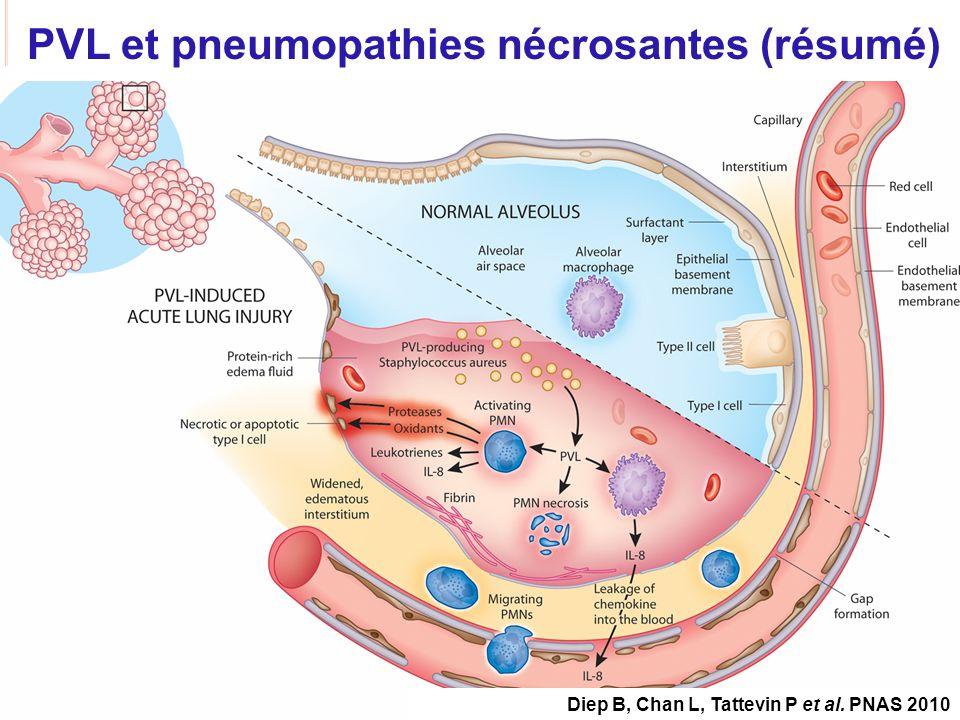 PVL et pneumopathies nécrosantes (résumé)