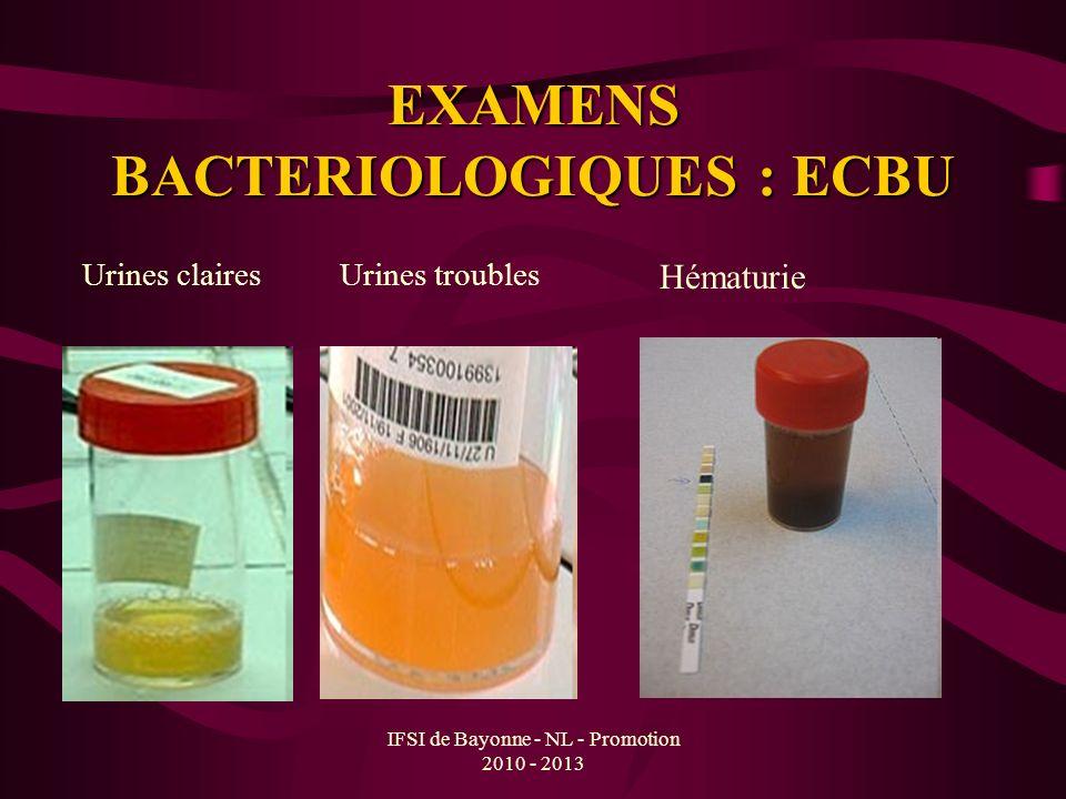 EXAMENS BACTERIOLOGIQUES : ECBU