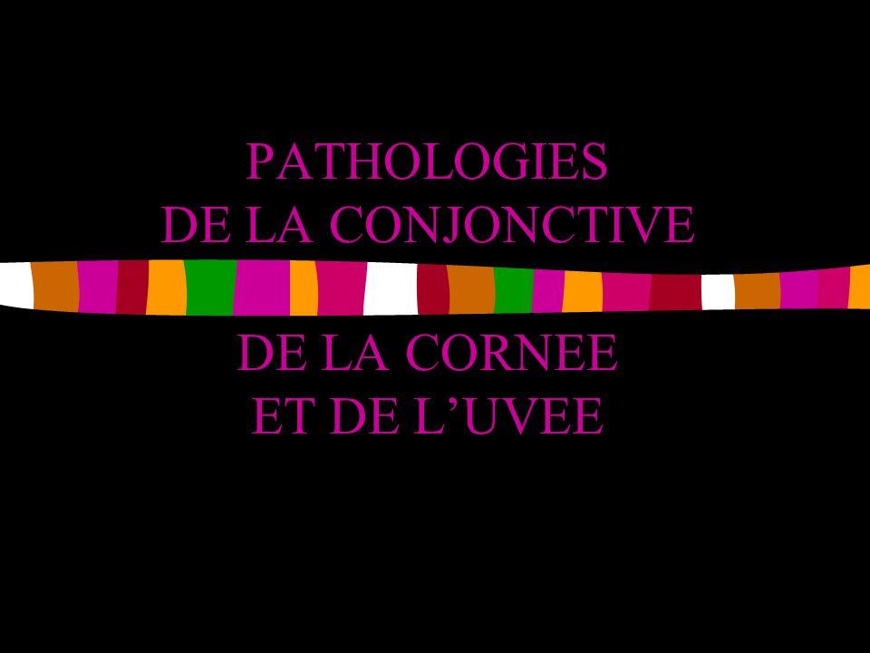 PATHOLOGIES DE LA CONJONCTIVE DE LA CORNEE ET DE L'UVEE