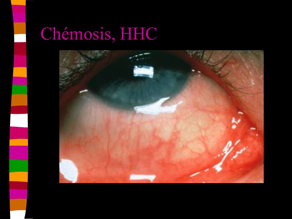 Chémosis, HHC
