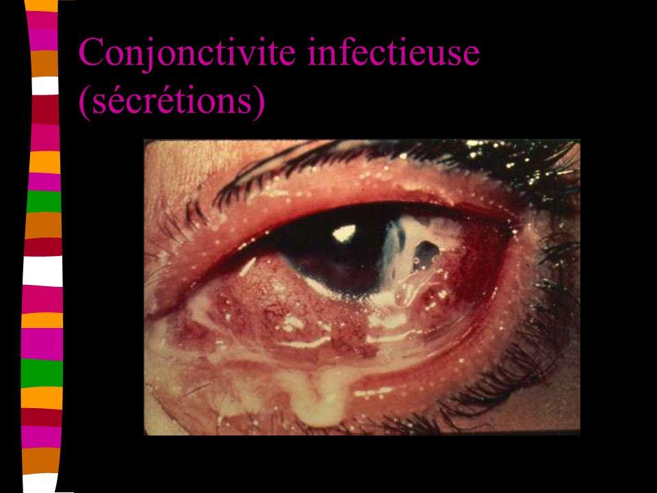 Conjonctivite infectieuse (sécrétions)