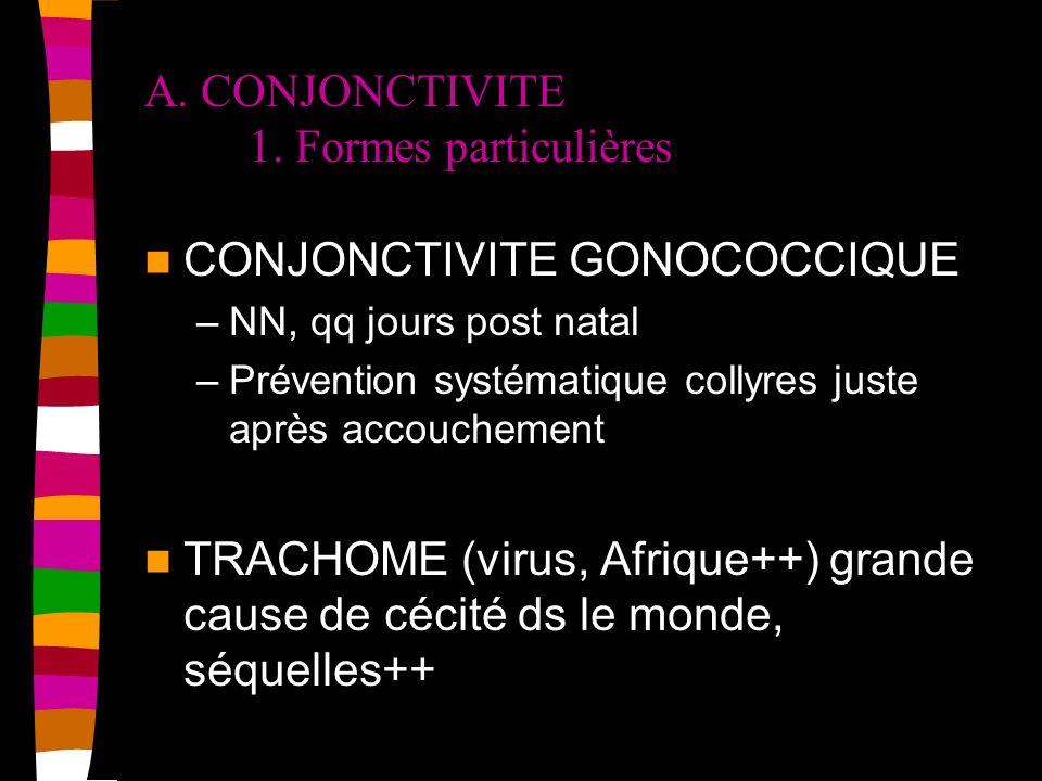 A. CONJONCTIVITE 1. Formes particulières