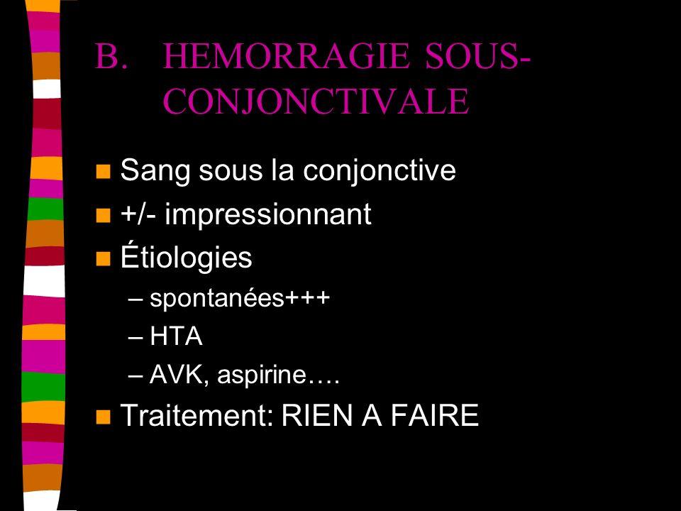B. HEMORRAGIE SOUS- CONJONCTIVALE