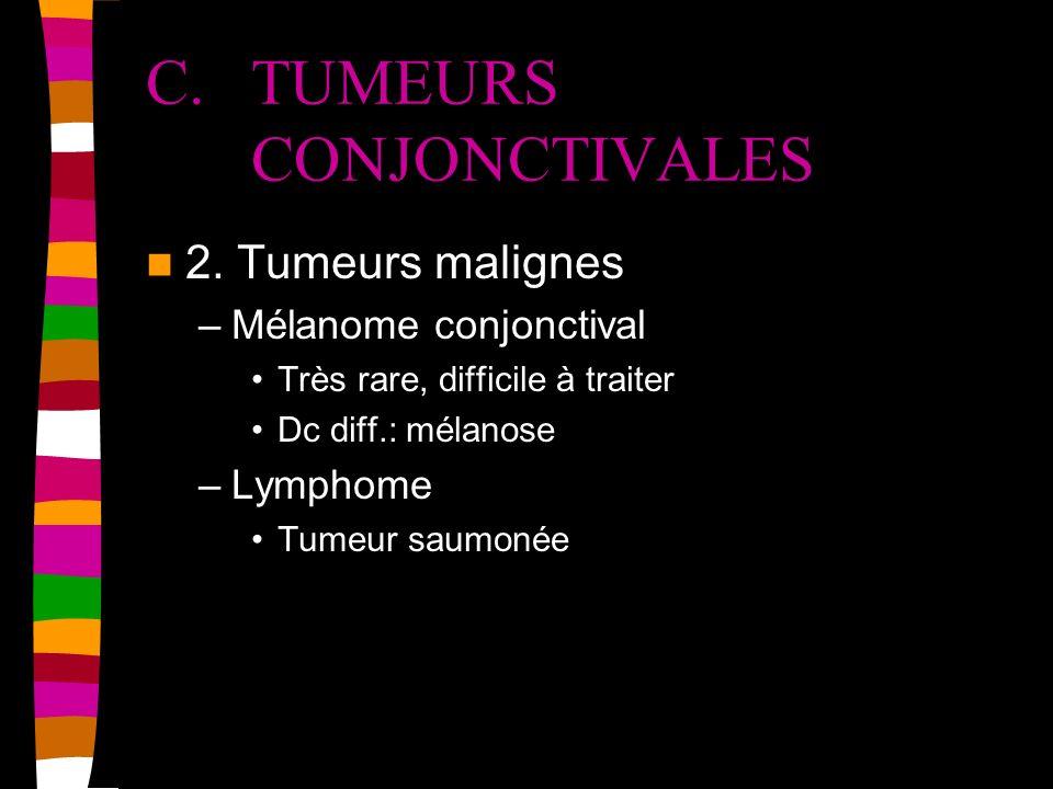 C. TUMEURS CONJONCTIVALES