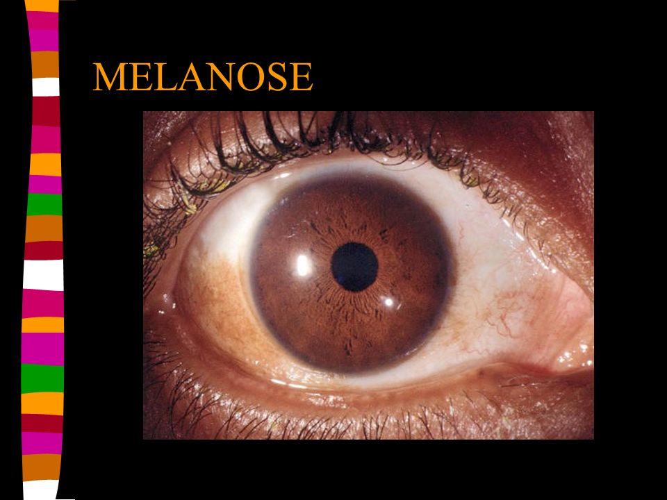 MELANOSE
