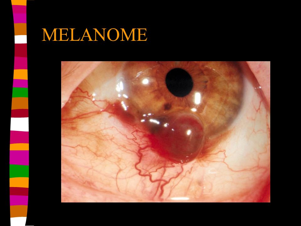 MELANOME