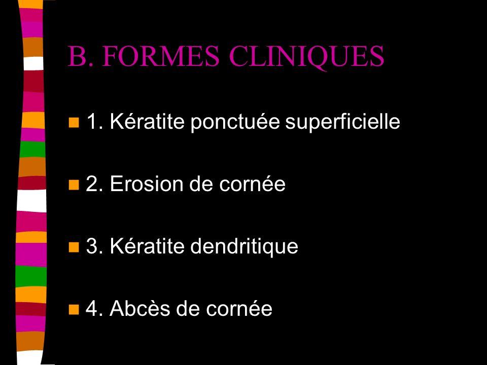 B. FORMES CLINIQUES 1. Kératite ponctuée superficielle