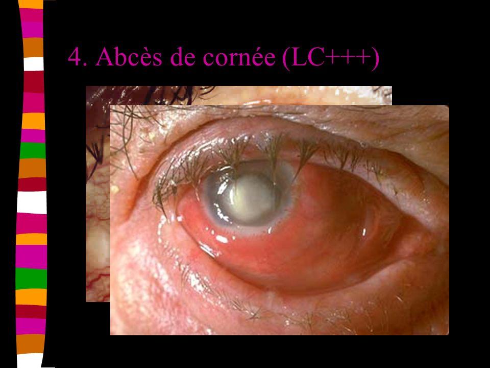 4. Abcès de cornée (LC+++)