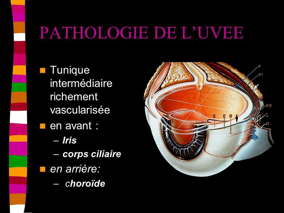 PATHOLOGIE DE L'UVEE Tunique intermédiaire richement vascularisée