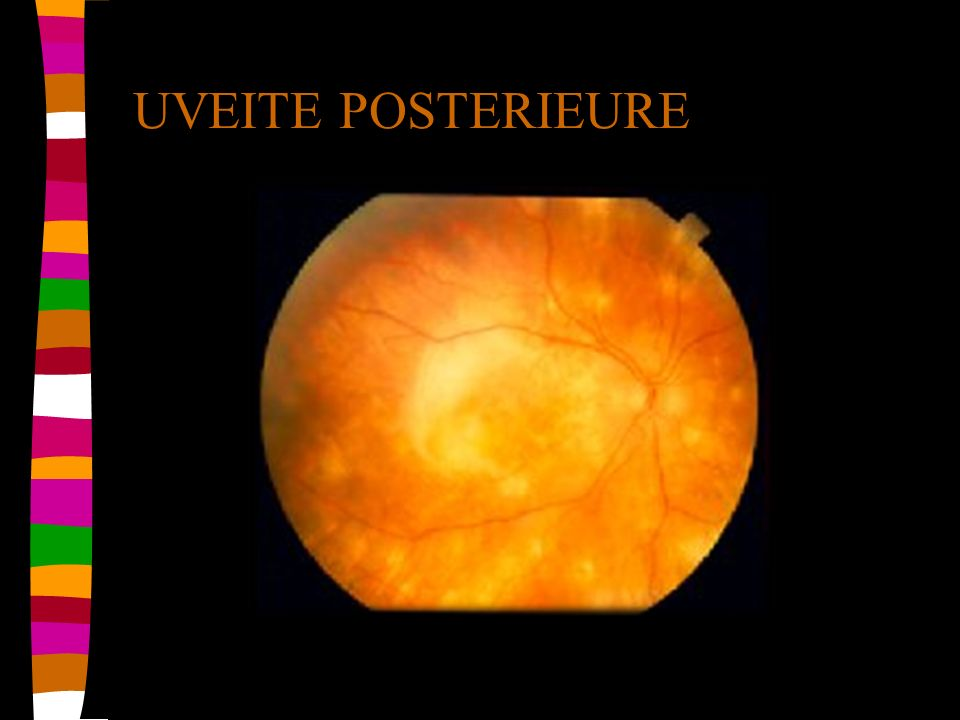 UVEITE POSTERIEURE