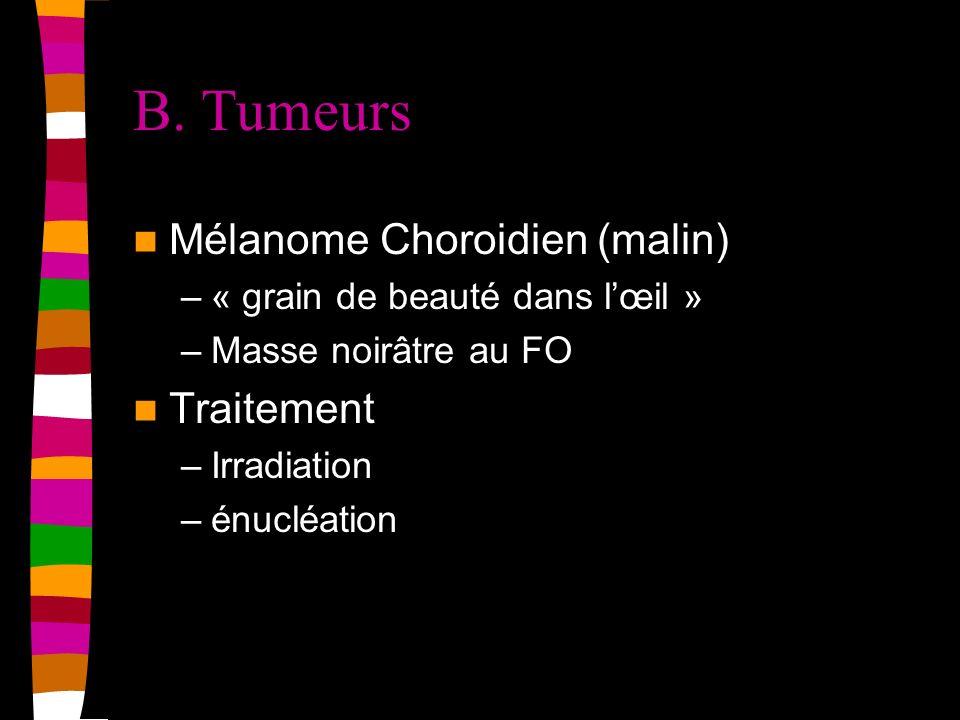 B. Tumeurs Mélanome Choroidien (malin) Traitement