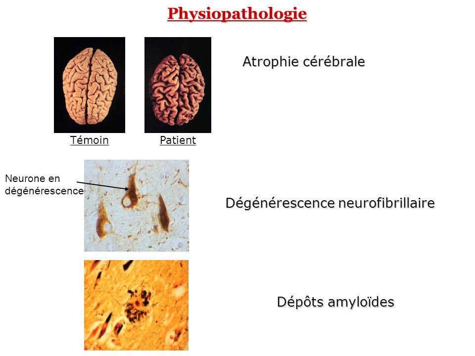 Physiopathologie Atrophie cérébrale Dégénérescence neurofibrillaire