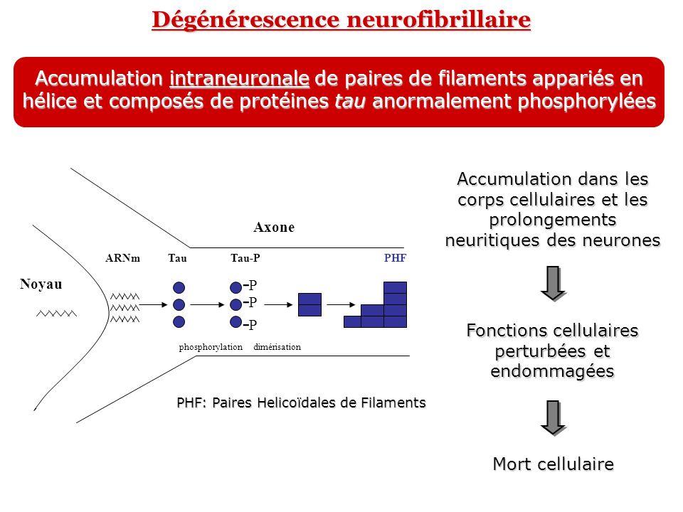 Dégénérescence neurofibrillaire