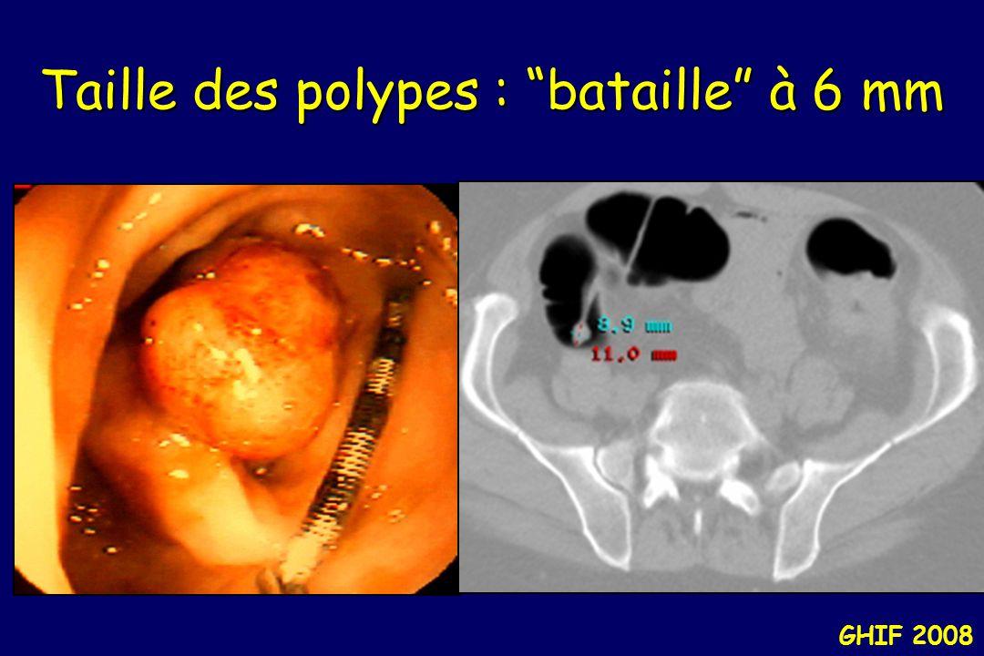 Taille des polypes : bataille à 6 mm