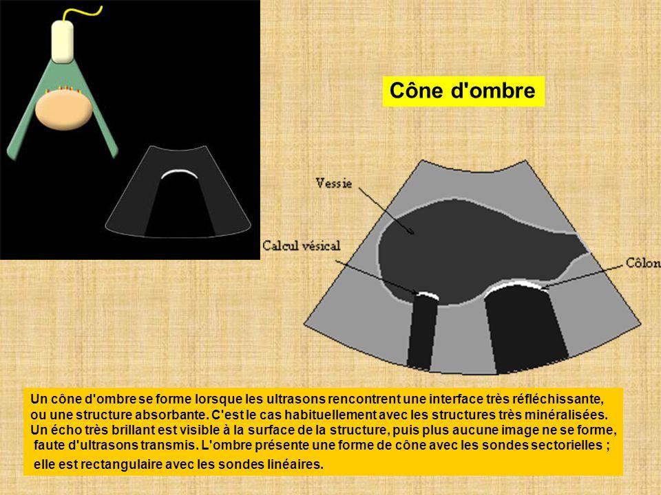 Cône d ombre Un cône d ombre se forme lorsque les ultrasons rencontrent une interface très réfléchissante,