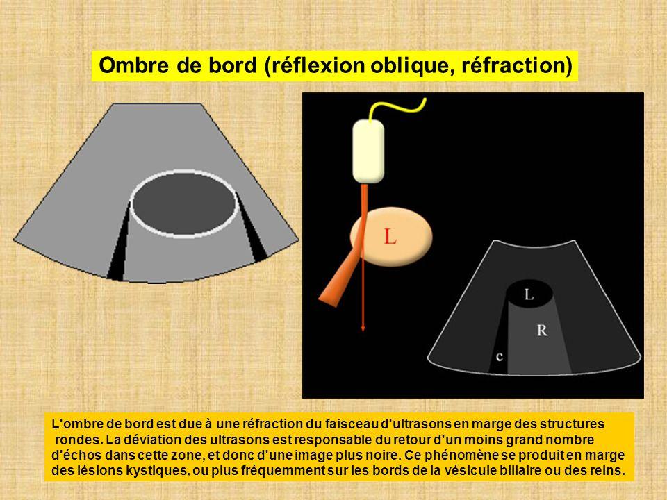 Ombre de bord (réflexion oblique, réfraction)