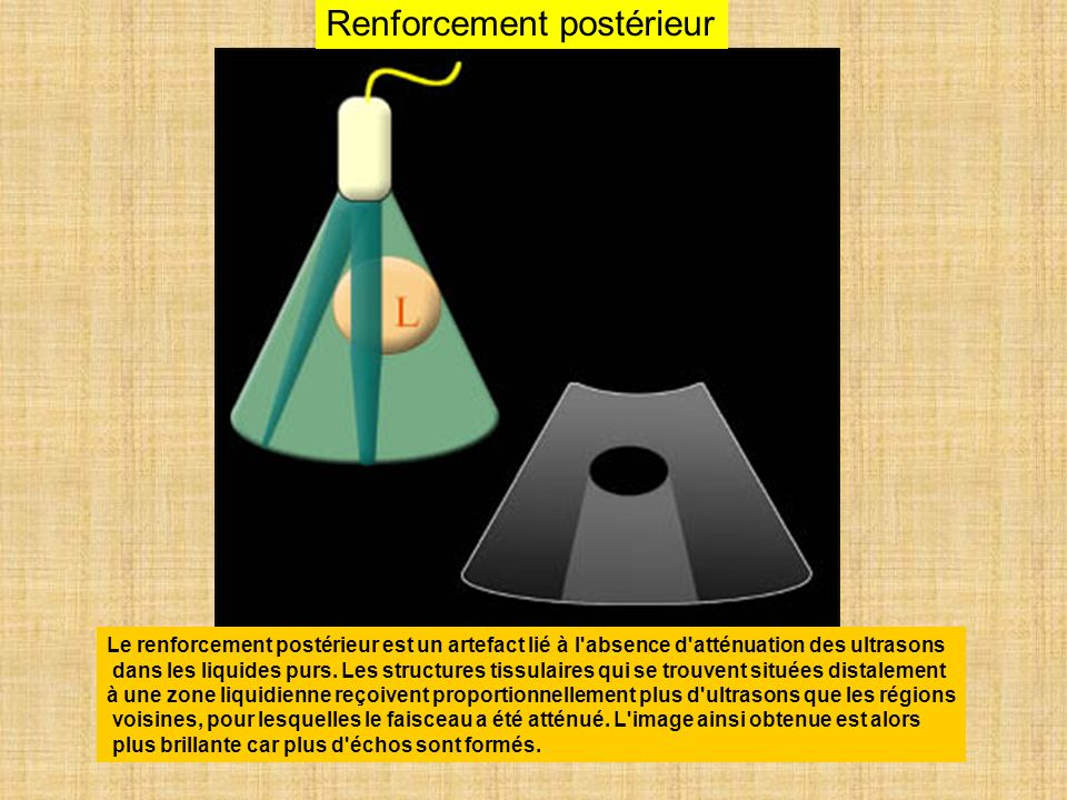 Renforcement postérieur