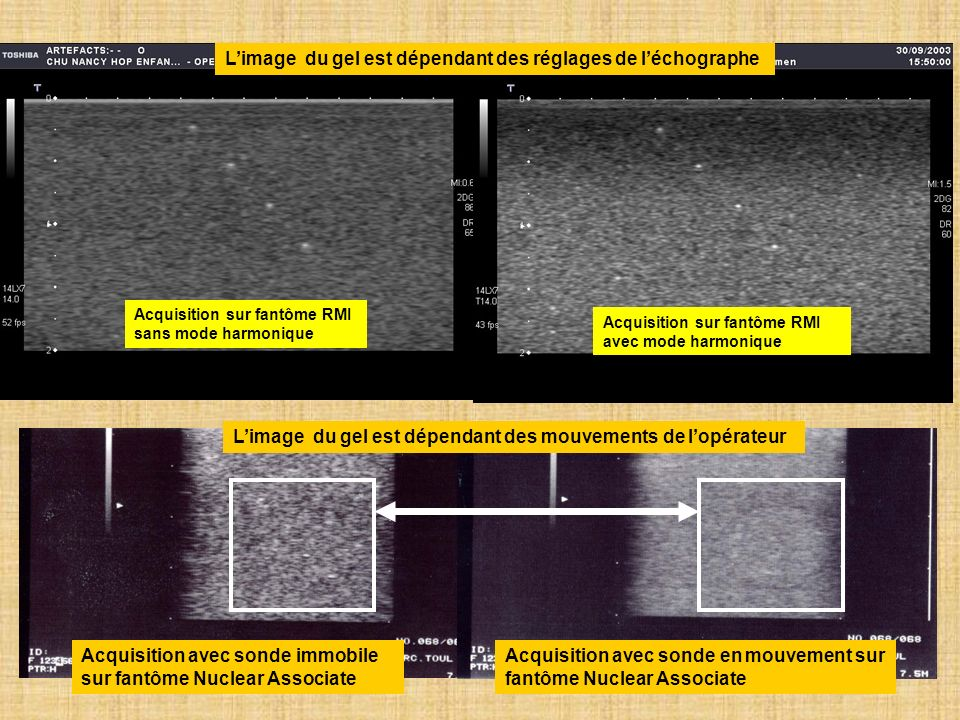 L'image du gel est dépendant des réglages de l'échographe