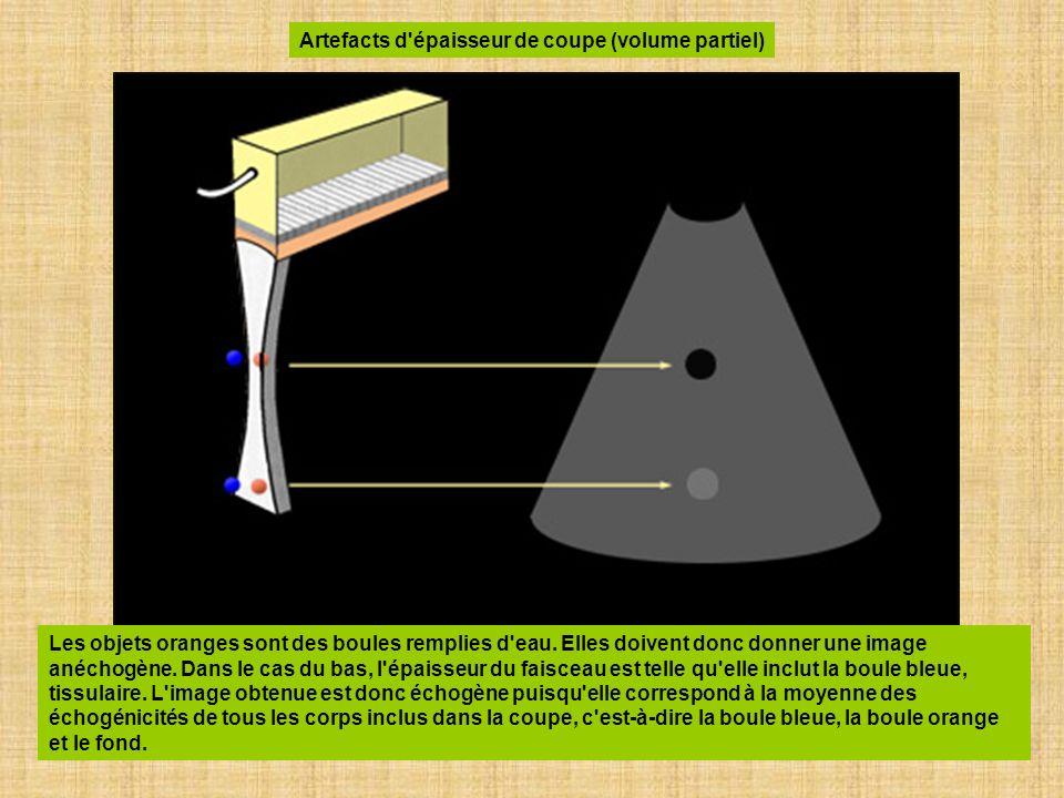 Artefacts d épaisseur de coupe (volume partiel)