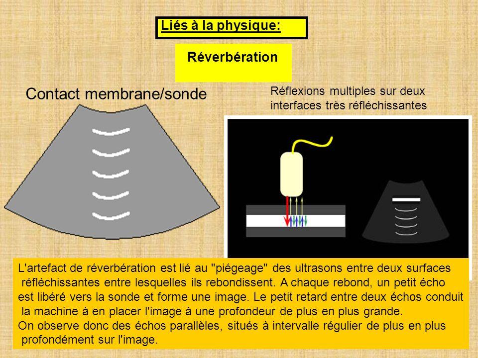 Contact membrane/sonde