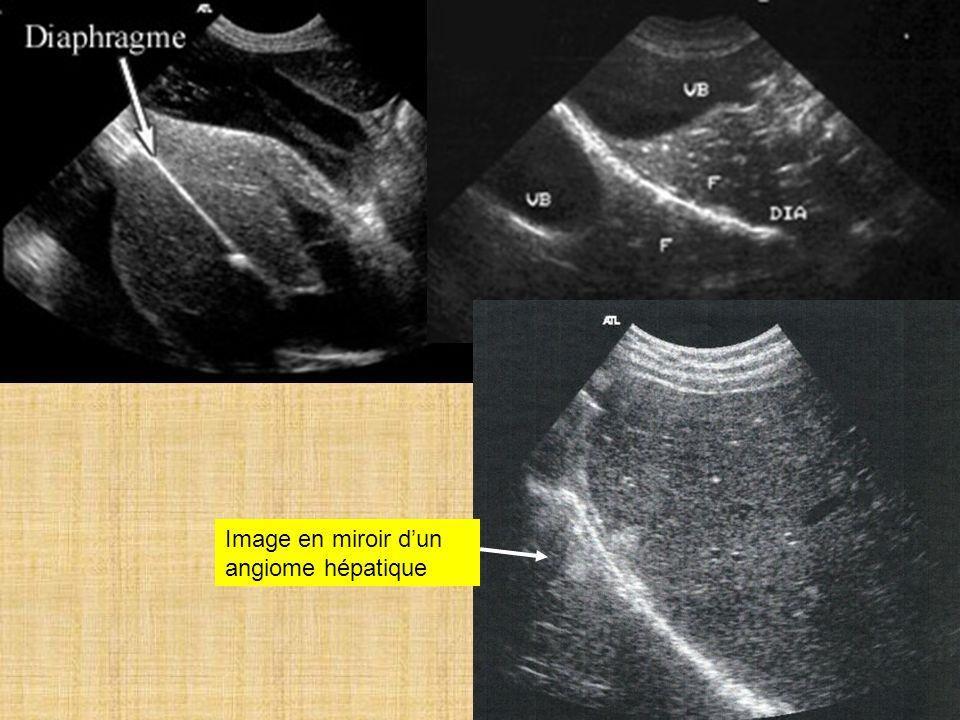 Image en miroir d'un angiome hépatique