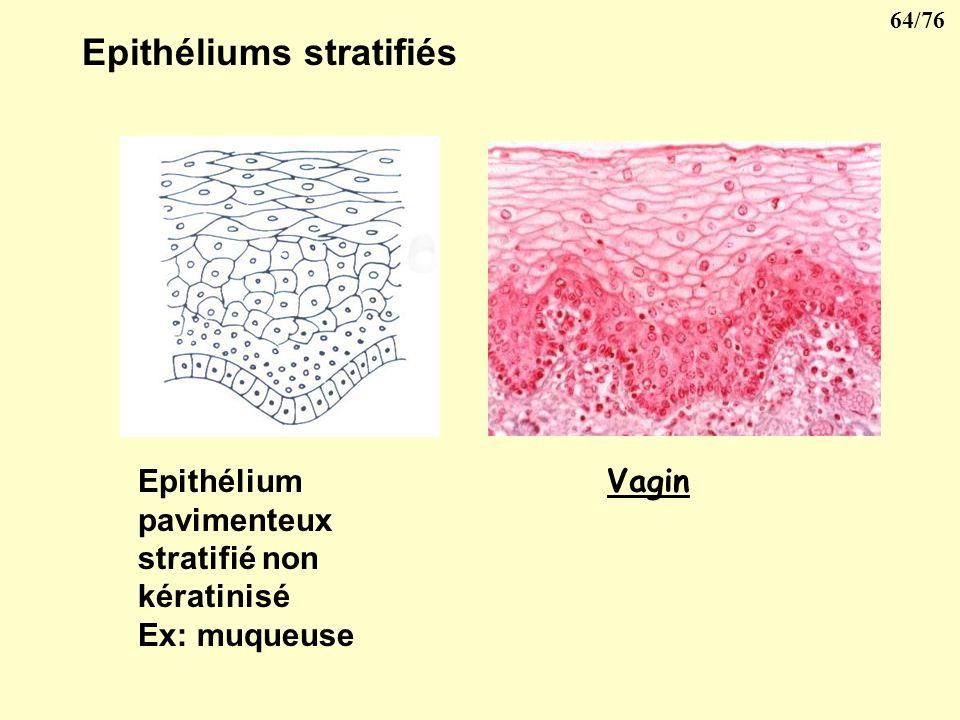 Epithéliums stratifiés